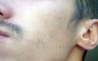 Что делать, если борода на щеках не растет: как найти причину и устранить ее