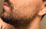 Как отрастить бороду, если она редкая: причины редкой щетины на лице, способы увеличения густоты и советы по оформлению