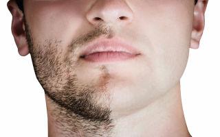 Как отрастить красивую бороду в 14-17 лет