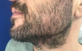 Что делать, если борода растет неравномерно: причины и способы решения проблемы