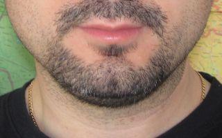 Почему не растет борода в 17, 19, 25, 30 и 40 лет: основные причины