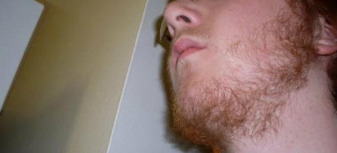 Реально ли быстро отрастить бороду в 15 лет