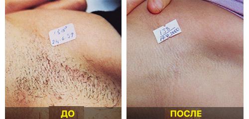 До и после ELOSа