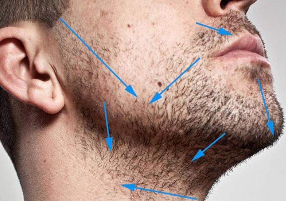 Направление роста волос на лице