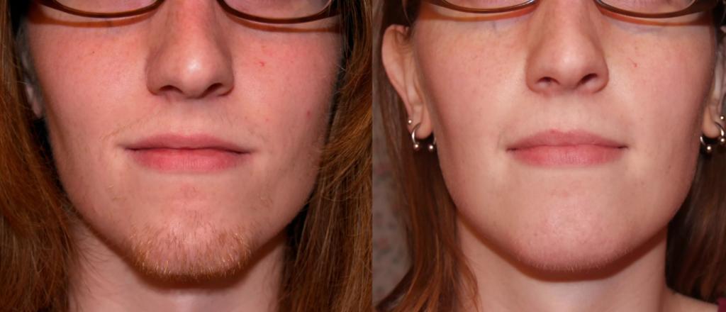 Эпиляция лица до и после