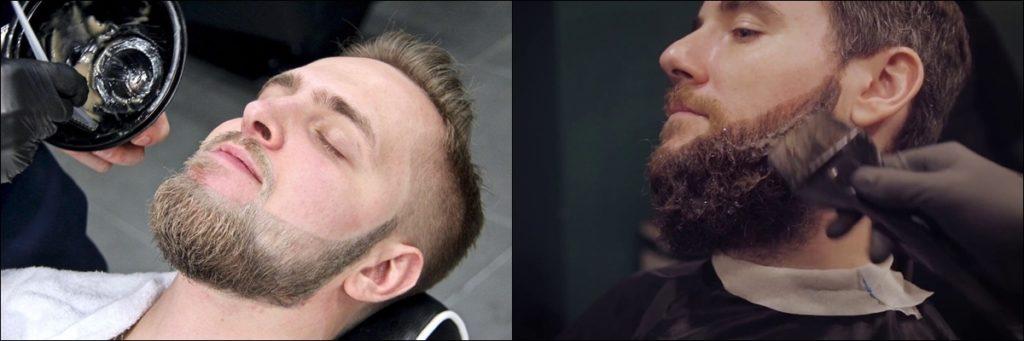 Раннее поседение бороды