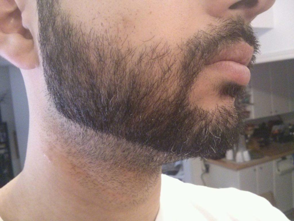 Стрижка бороды на шее